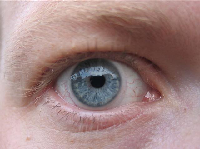 Multifokallinsen Erfahrungen